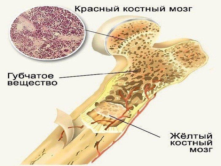 Костный мозг как лечить 26